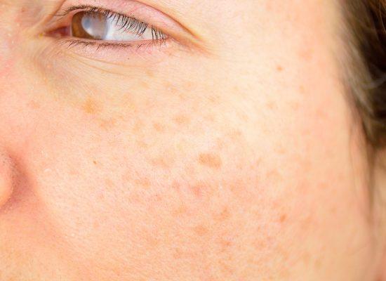 Sun-Damaged-Skin